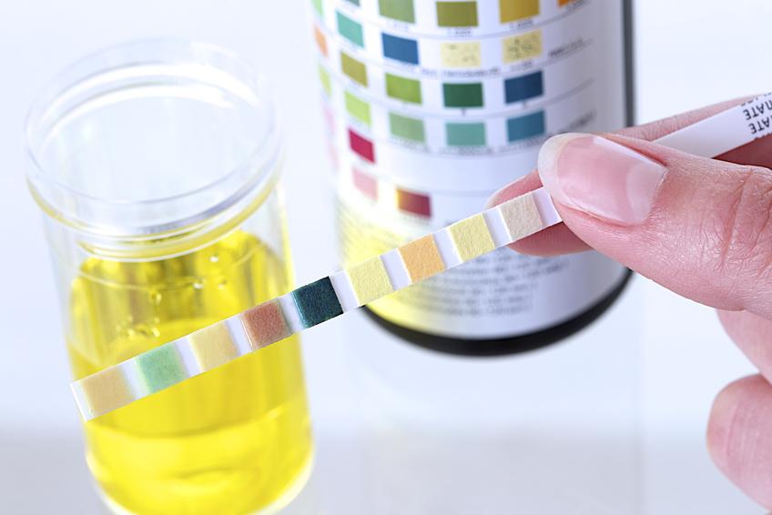 analyses d'urines