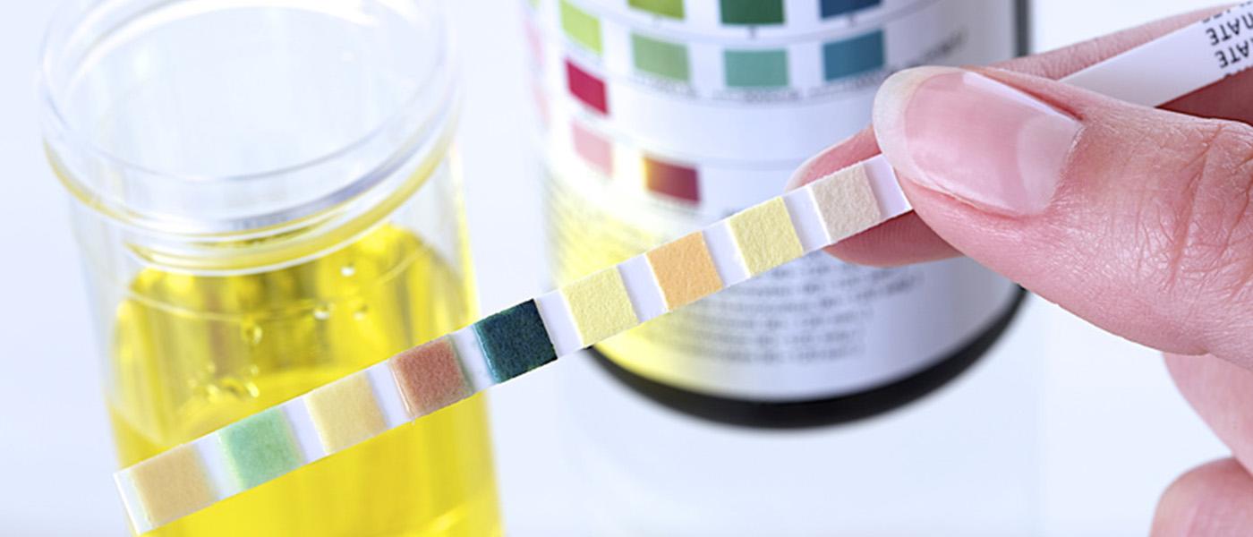 bandelettes urinaires pour detecter le regime cetogene