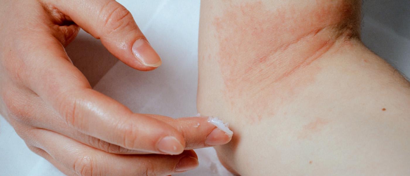 eczema de la main