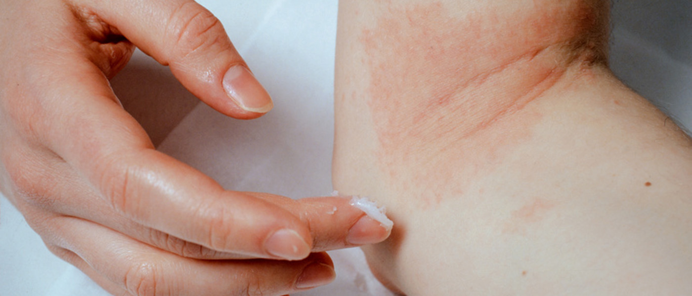 traitement dermatite atopique ou eczema