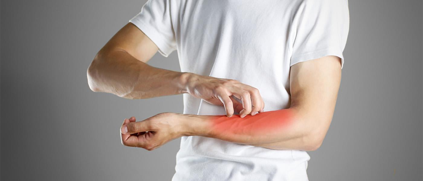 démangeaison allergie