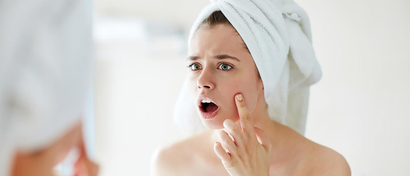dermite séborréique visage